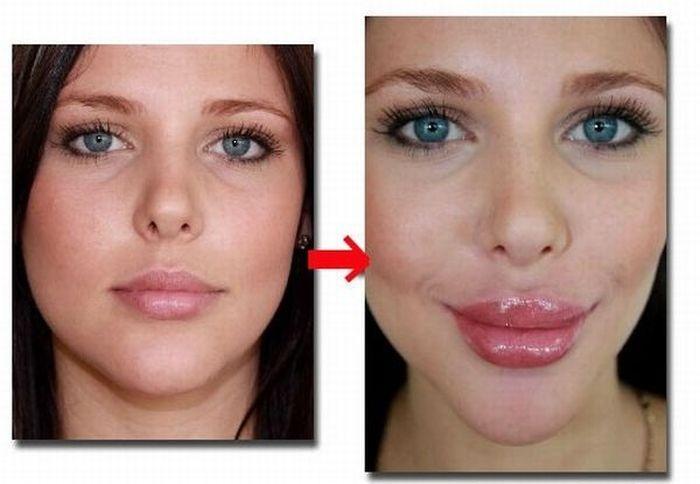 Увеличение губ филлирующими